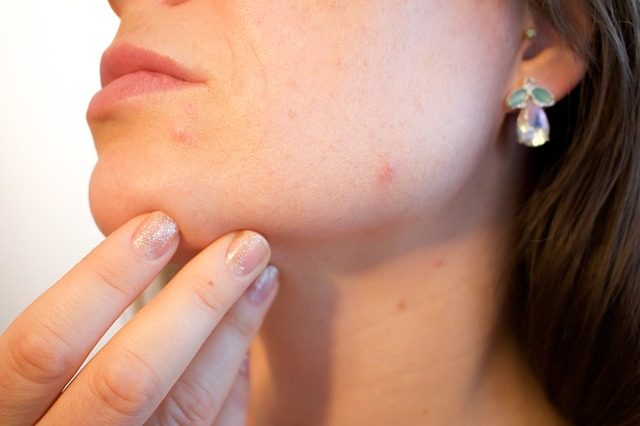 4 Tips to Prevent Acne