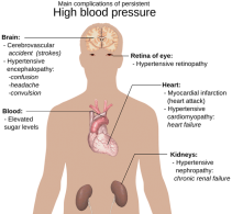 3 Tips to Control Hypertension